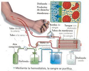 hemodialisis-merida1