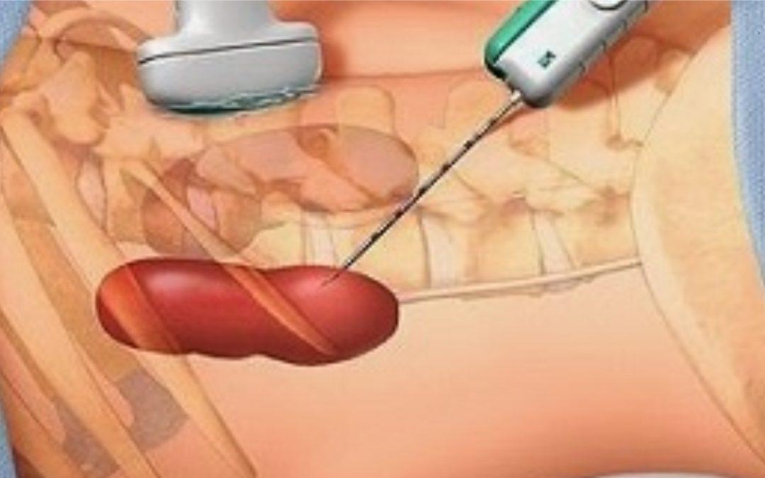 Qué es una biopsia renal?